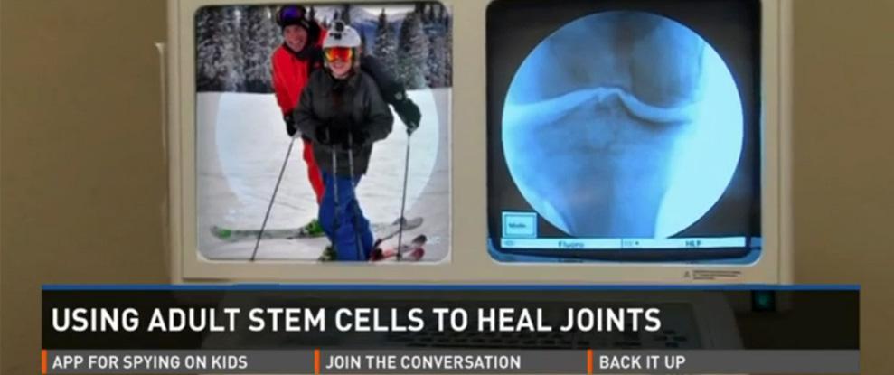 stem cell alternative knee replacement Denver