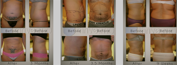 For best examples of the results our patients enjoy please visit our