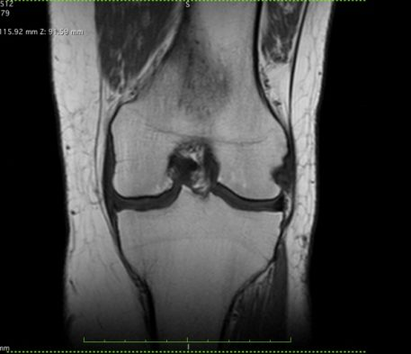 Coronal MRI image of a knee with mild arthritic changes